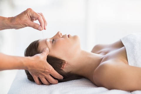 Relaxing acupuncture for stress reduction